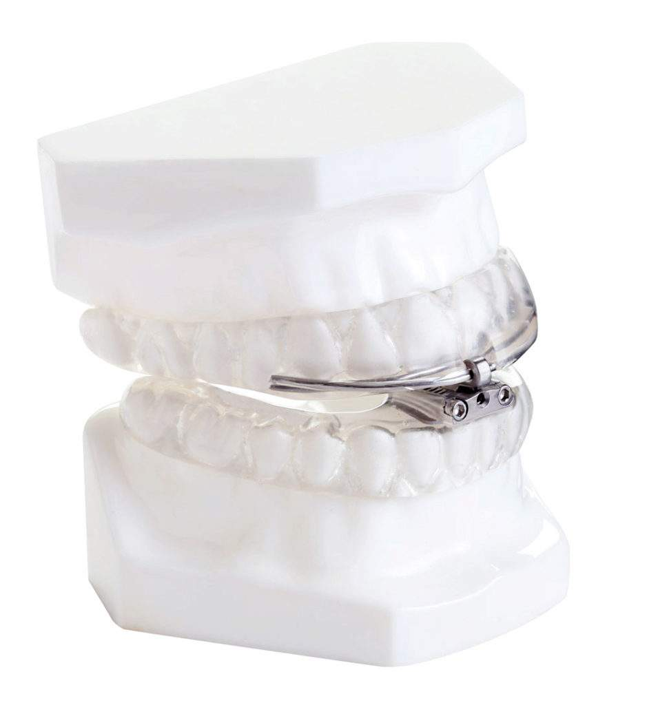 stop snoring mouth guard