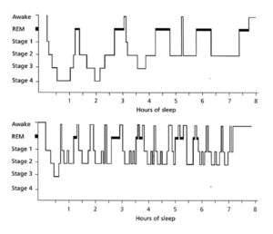 normal sleep cycle