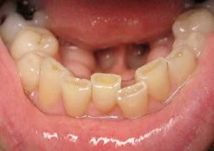 worn teeth due to grinding