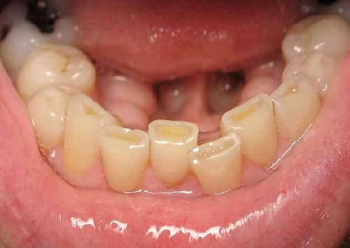 worn teeth tmj