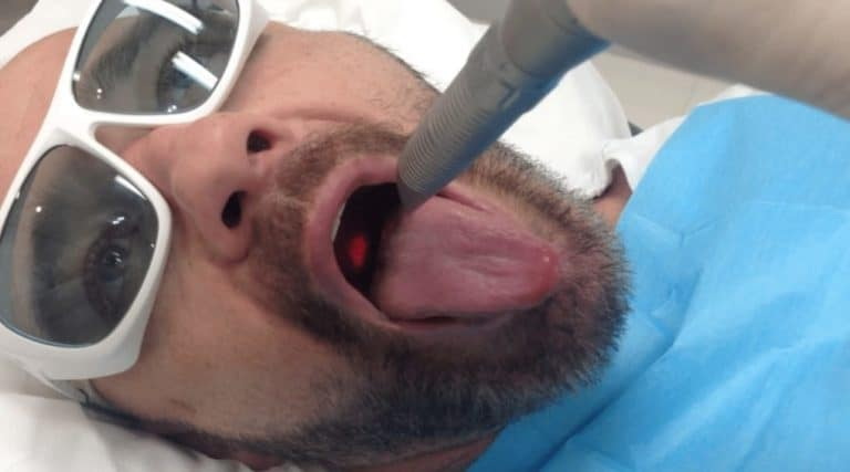 laser treatment for snoring