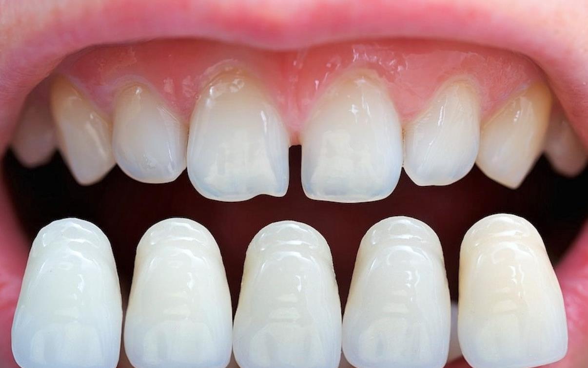 veneers for gap between teeth