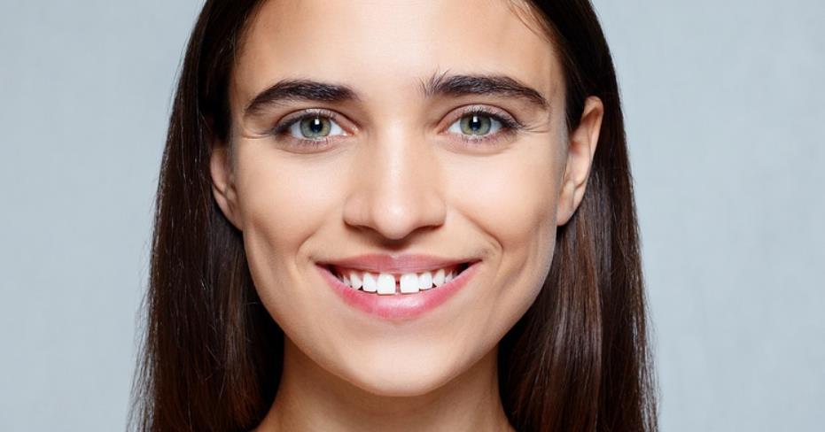 fix gap between front teeth