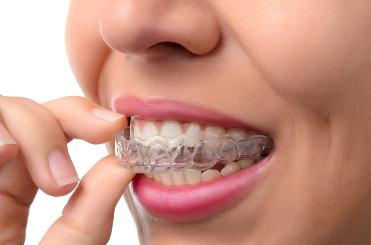 treat gap between teeth