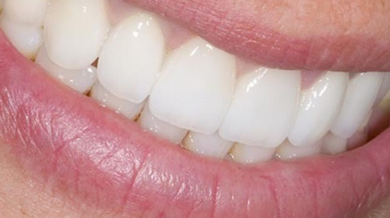 dental bridge benefits