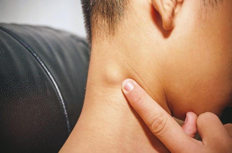 can TMJ cause swollen lymph nodes