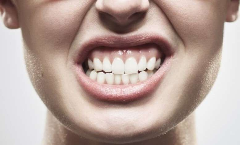 teeth clenching link to headaches anxiety